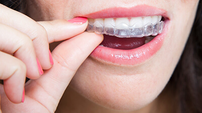 Invisalign Lake Forest