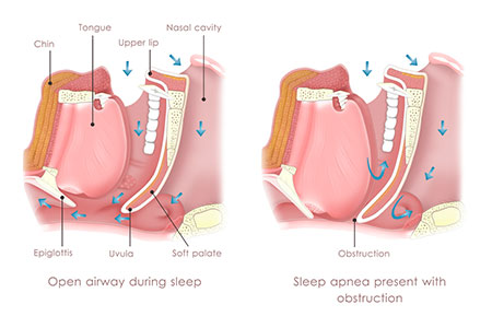 sleep apnea inner mouth structure in Lake Forest