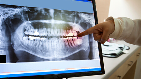 Lake Forest dentist looking at digital teeth x-ray
